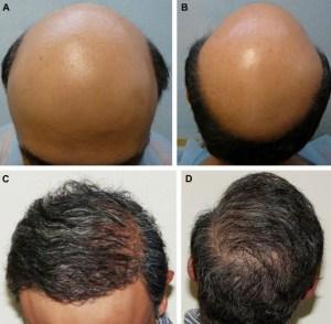Dr Umar Body Hair Transplant Results