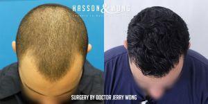 Dr. Wong FUE 1267 grafts