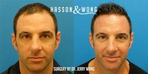 Dr. Wong FUE 2429 grafts