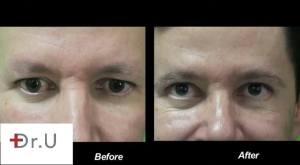 Eyebrow Eyelash Hair Transplant Training