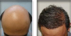 Fue Hair Transplant Training Losangeles
