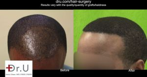 Fue Hair Transplant Training Results