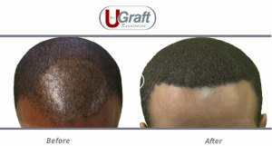 Fue Hair Transplant Training Us