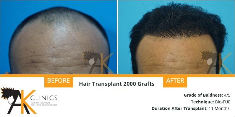hair-transplant-result-18