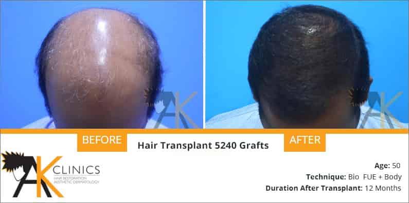 hair-transplant-result-20