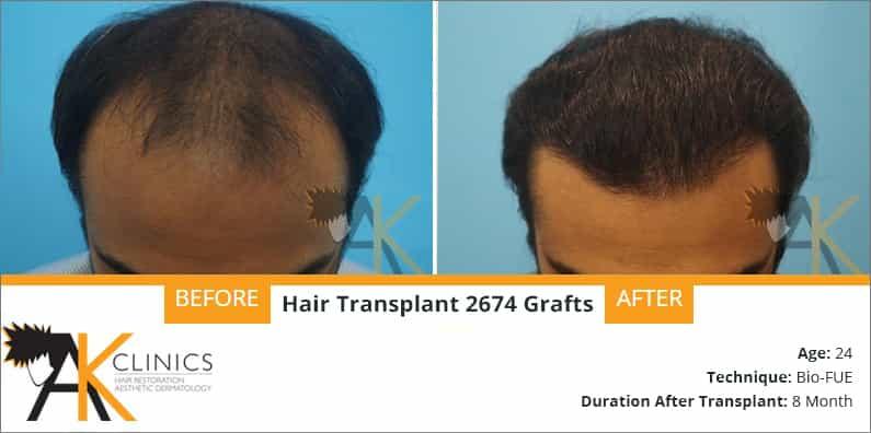 hair-transplant-result-21