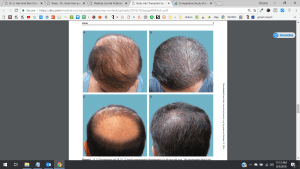 Hair Transplant Training Patients