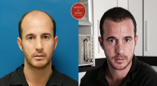 Would follow hair transplant procedure strip good head. have