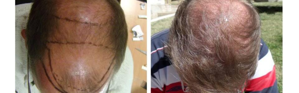 hdc hair transplant review cyprus