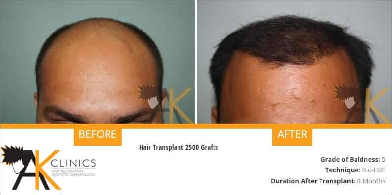 india-bio-fue-hair-transplant-result-6