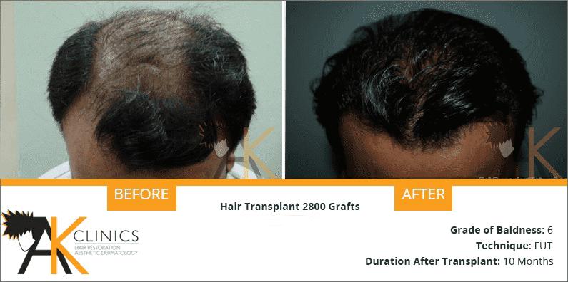 india-fut-strip-transplant-result-5