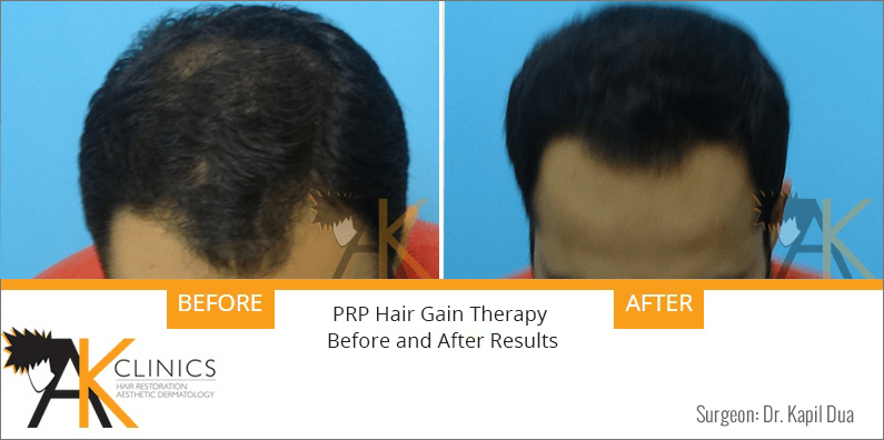 prp-hair-therapy-results-1