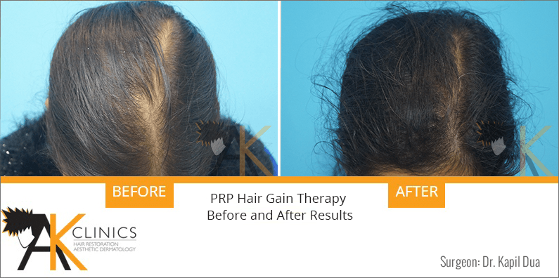 prp-hair-therapy-results-7