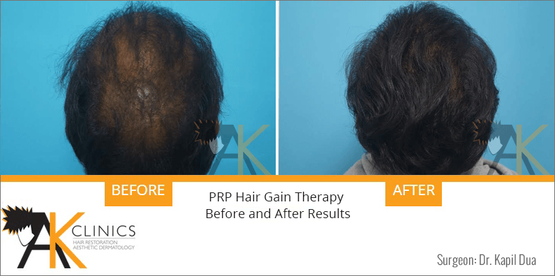 prp-hair-therapy-results-8