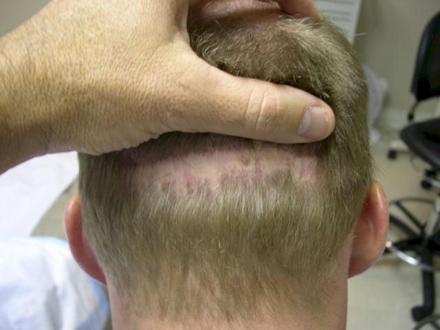 Hair Transplant Donor Scar Repair Toronto
