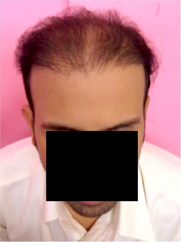 Hair Surgery Charity Repair Patient Perwez India
