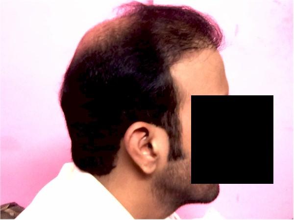 Repair for bad hair transplants London UK