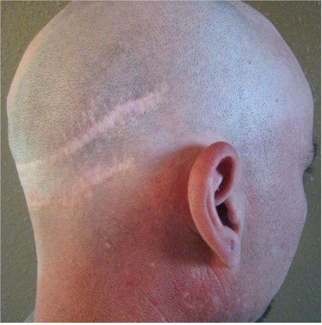 Charity repair for hair transplant strip scars UK