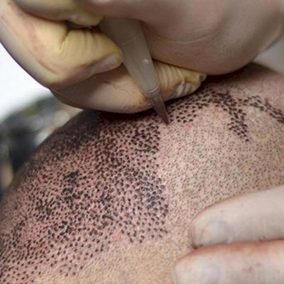 Scalp Tattoo - Scalp Micropigmentation India