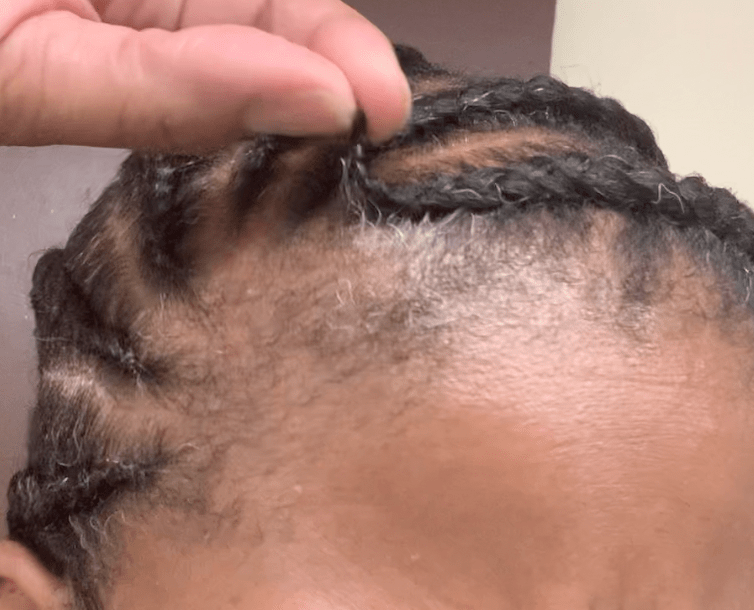 You are currently viewing Are Protective Hairstyles Truly As Protective?