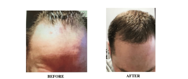 Picture Collage 4 of a before and after FUE Hair Transplant at Hair Transplant Sydney
