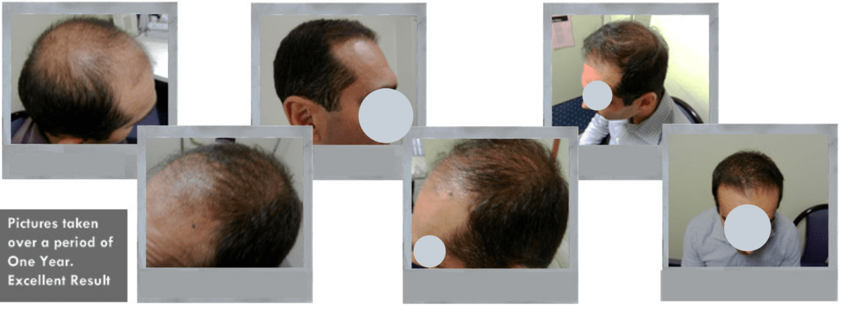Collage 2 of a Successful Before and After FUE Hair Transplant at Hair Transplant Sydney