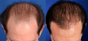 Follicular Unit Transplantation before and after