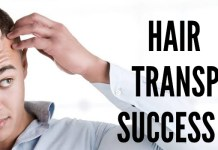 hair transplant success rates