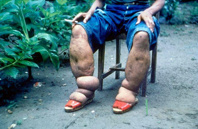 Haïti-Santé: vers l'élimination de la filariose en Haïti