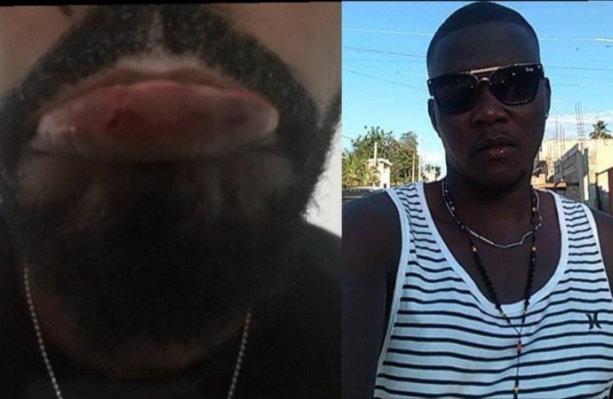 Haïti-Insécurité : Le jeune journaliste Stevens Grégor Gabriel agressé physiquement par un sapeur-pompier dénommé Mario Pierre-Louis