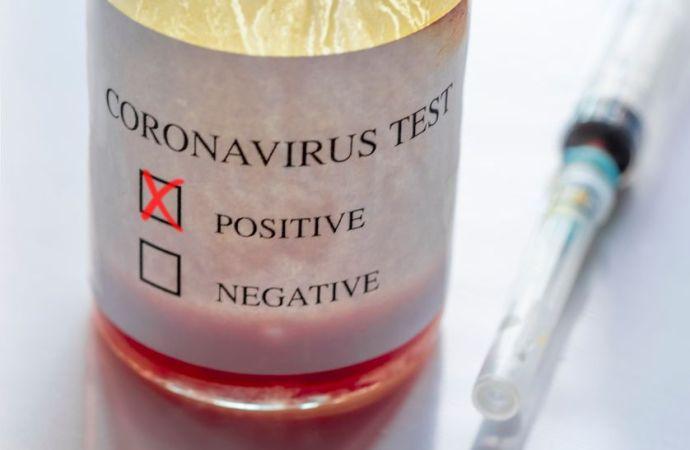 Haïti-Coronavirus : 111 nouveaux cas recensés, 2 morts