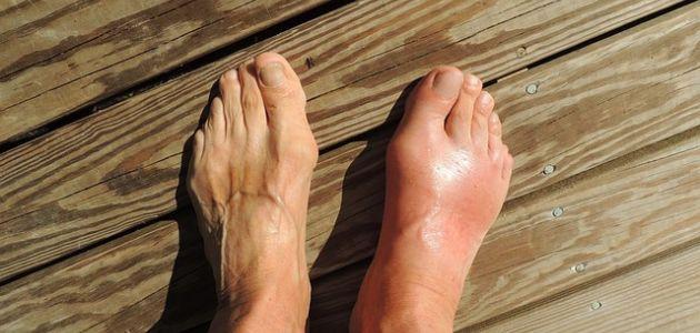 ارتفاع حمض اليوريك أسيد في الجسم وأسبابه و العلاجات الفعالة