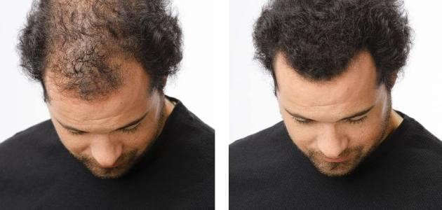 كيفية علاج تساقط الشعر للرجال