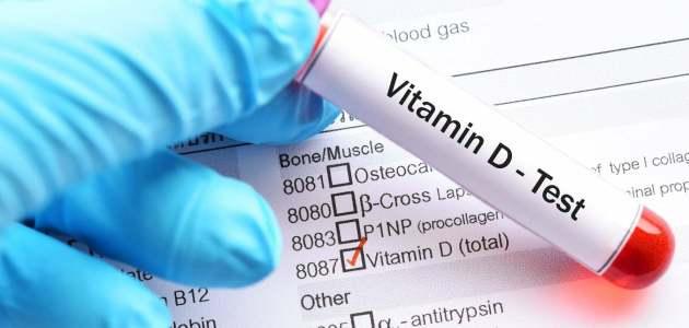 ما هي أعراض نقص فيتامين د Vitamin D Deficiency