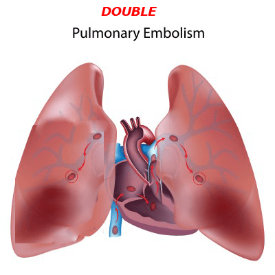Education on Pulmonary Embolism