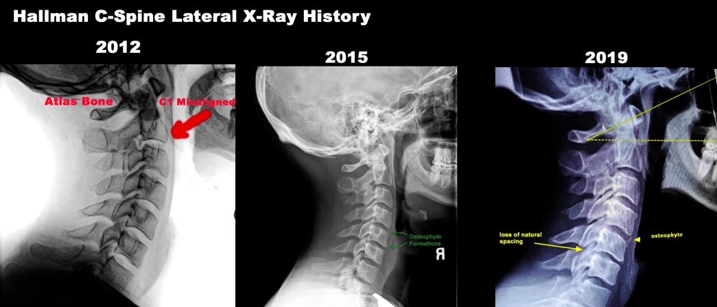 C-Spine XRay Over 7 Years History