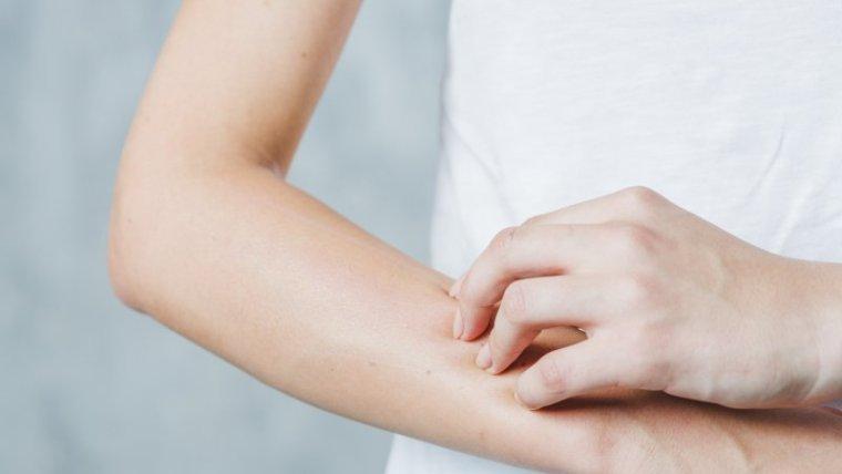 Kulit Gatal Saat Hamil? Atasi dengan Cara ini