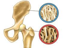 osteoporosis-skeleton-close-up-showing-normal-bone-digital-illustration-31202657
