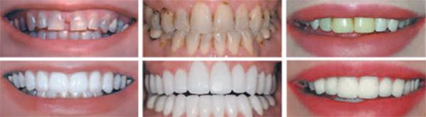 Bloomsburg Cosmetic Dentist