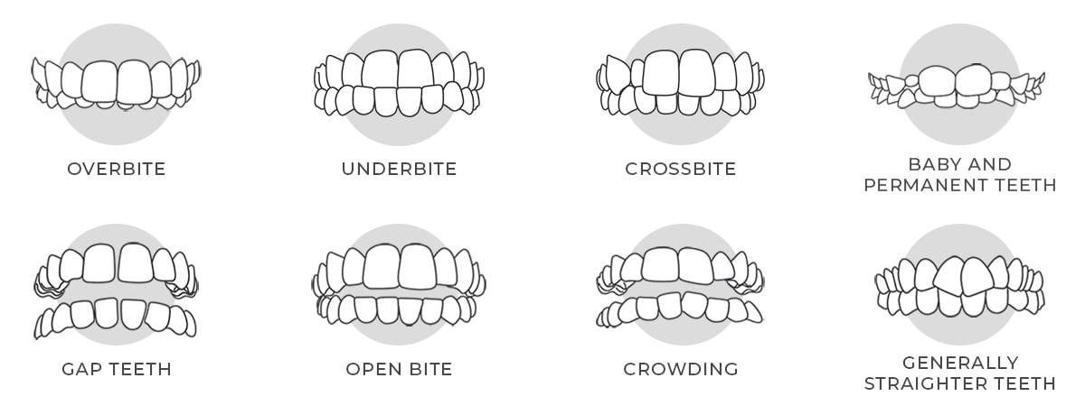 https://i1.wp.com/hampsteaddental.com.au/wp-content/uploads/Invisalign-Teeths-Image-for-web-grey-min.jpg?fit=1200%2C460&ssl=1