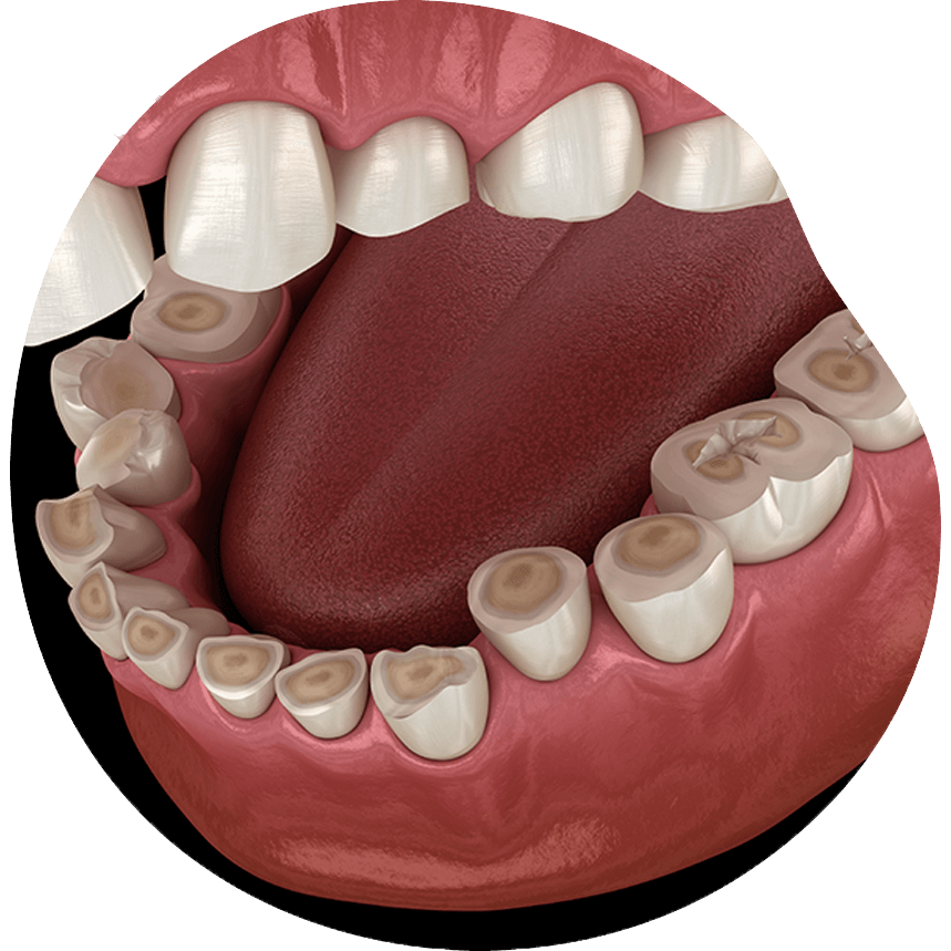 https://i1.wp.com/hampsteaddental.com.au/wp-content/uploads/teeth-grinding-4-opt.png?fit=859%2C859&ssl=1