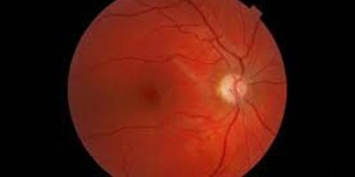 photographie du fond d'oeil d'une personne atteinte de neuropathie optique héréditaire de Leber
