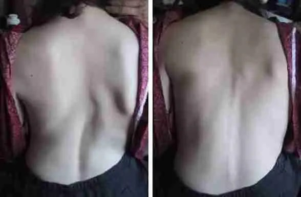 Multiple Sclerosis & Massage Therapy, Reflexology
