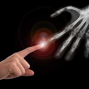 Hand Therapy Australia Sydney