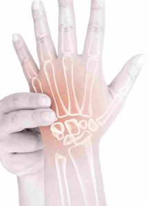 Hand Physiotherapy for wrist pain