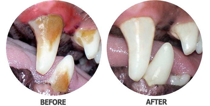Dental work before and after