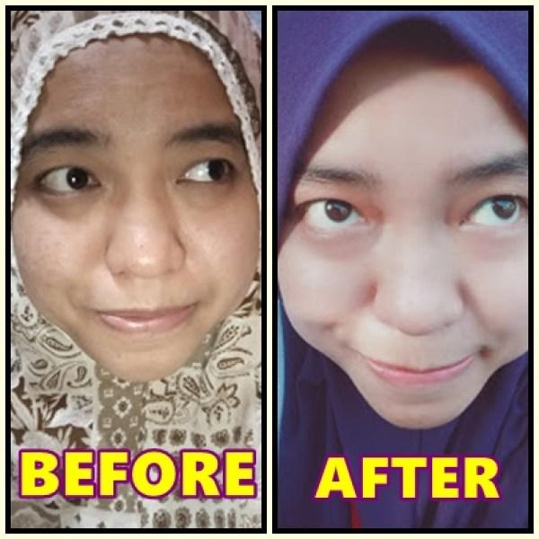 perbezaan kulit muka lebih ketara