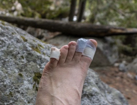 A bandaged hiker's foot after getting blisters on the trail. Find out how to prevent blisters when hiking, and how to treat blisters on the trail.