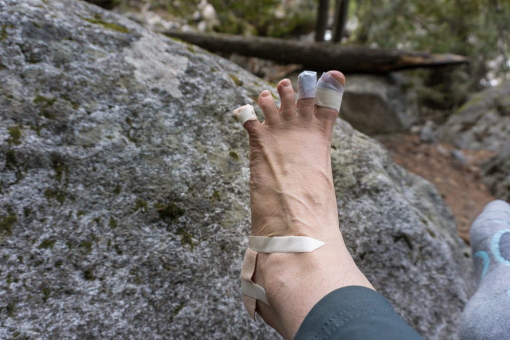 A hiker's foot with several kinds of bandages after getting blisters on the trail. Find out how to prevent blisters when hiking, and how to treat blisters on the trail.