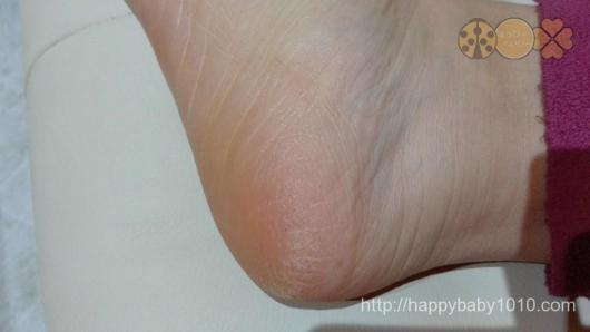ファムズベビー 足 検証 効果 左足で効果検証